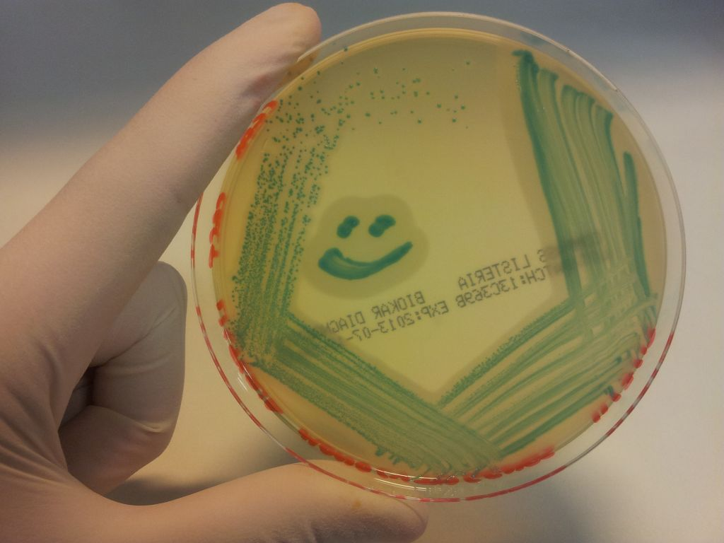How do you know if you have a listeria infection?